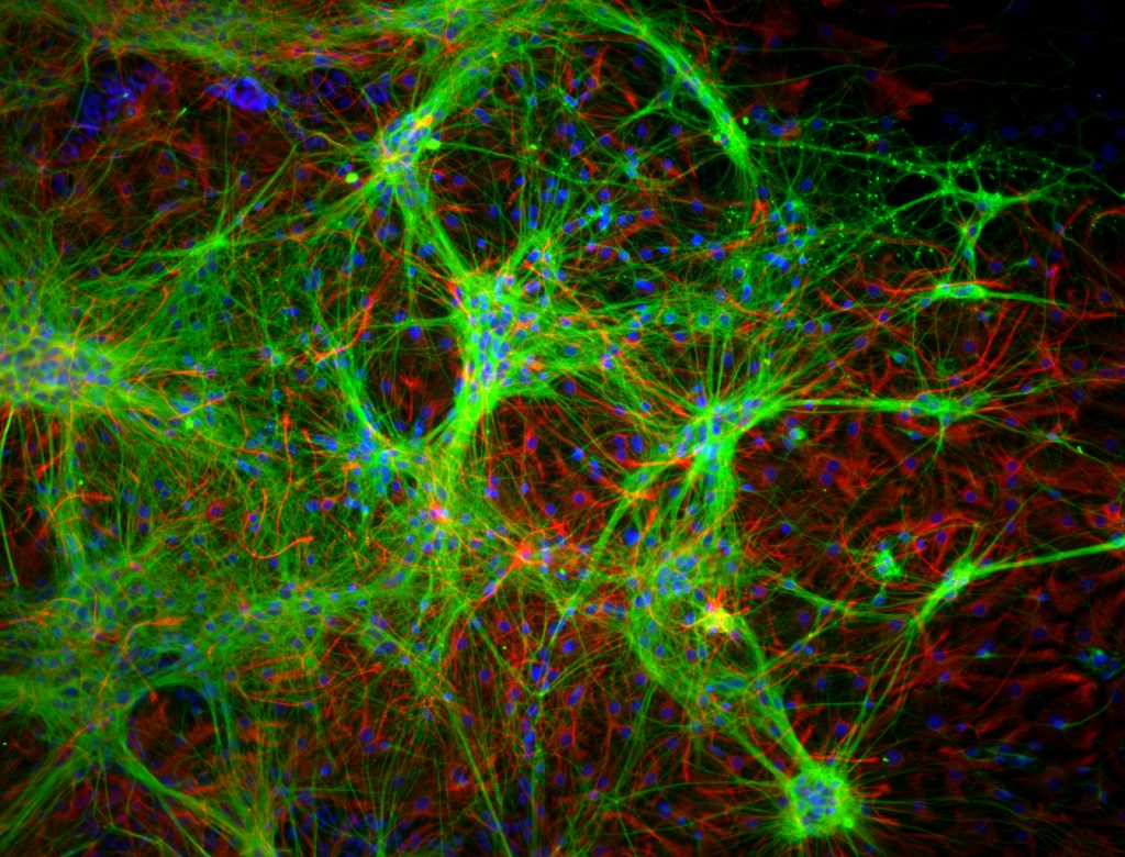 Stained primary neural cells on glass.