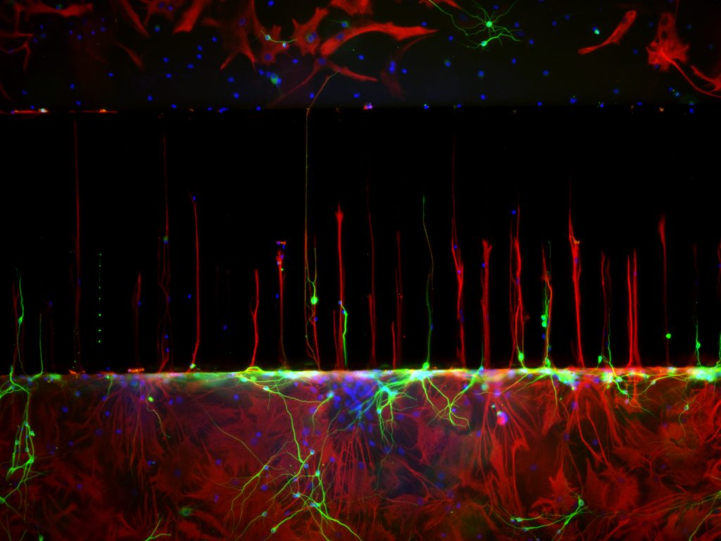 Stained primary neural cells growing through channels